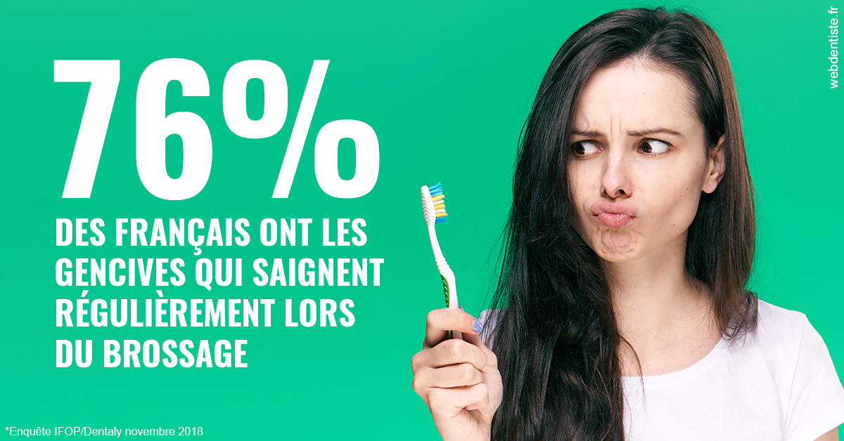 https://dr-bartmann-priscilla.chirurgiens-dentistes.fr/76% des Français 1